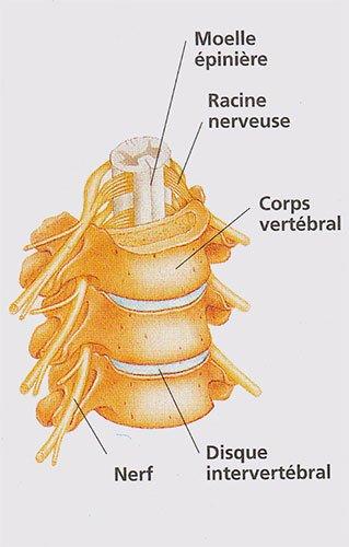 hydrotomie percutanee