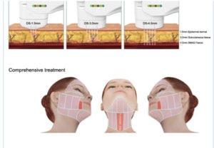 fonctionnement de l'hifu sur le visage et cou