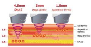 fonctionnement de l'hifu sur la peau