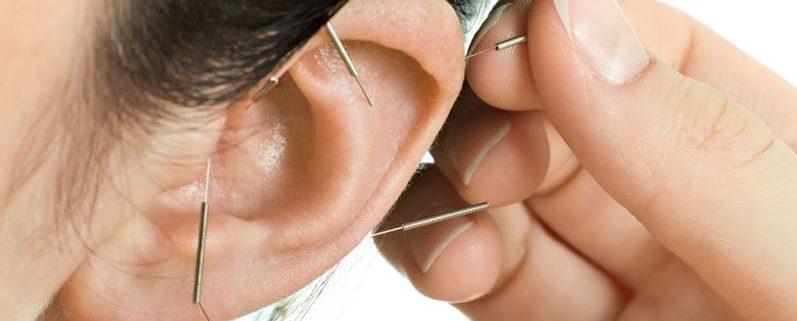 L'auriculotherapie sur l'oreil d'un patient